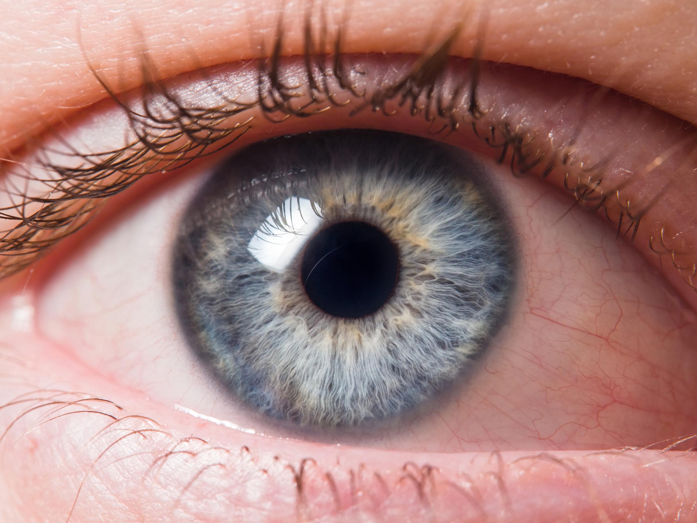 Ögonrosacea kan leda till en rad symtom i ögonen, som t ex röda, torra, irriterade eller grusiga ögon.