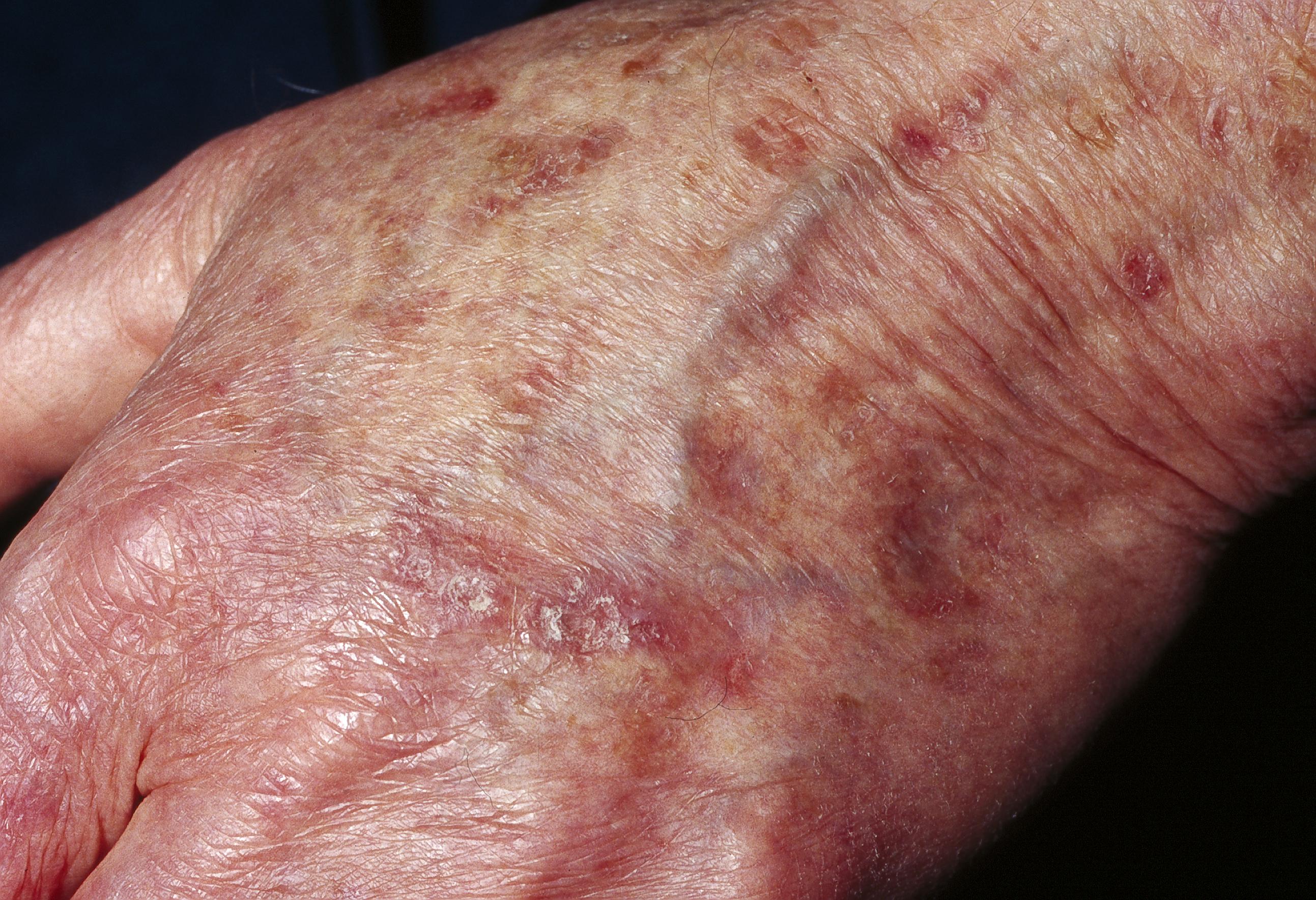 rosa fläckar på huden