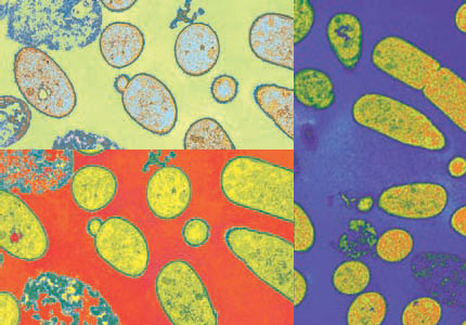 exempel på nyttiga bakterier