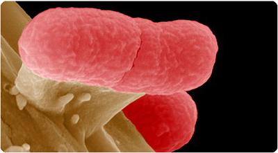 EHEC-bakterien. Foto: Manfred Rohde/Scanpix.