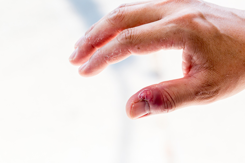 Nagelbandsinfektion är något som kan drabba alla och du kan själv förebygga det genom att ta hand om dina naglar.