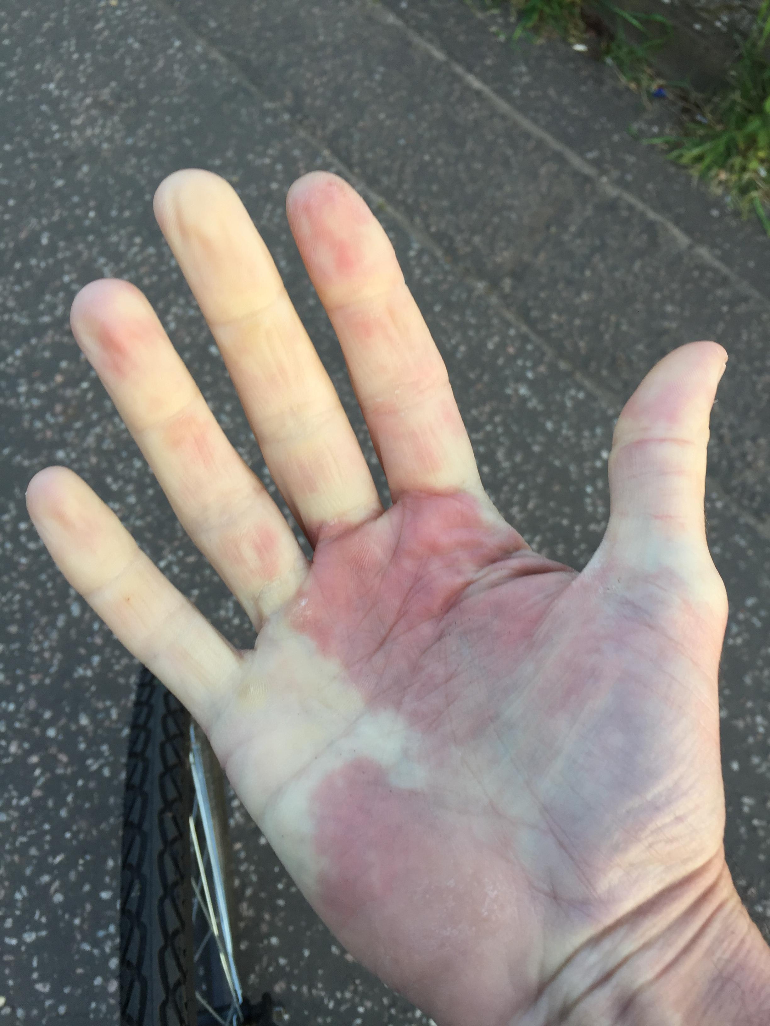 svullna händer vid promenad