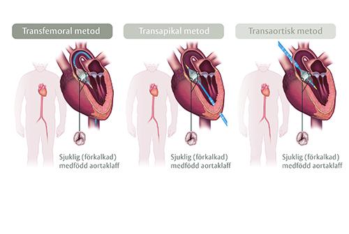 TAVI är en nyare metod av hjärtklaffsoperation som går ut på att man för in hjärtklaffen med hjälp av en kateter.