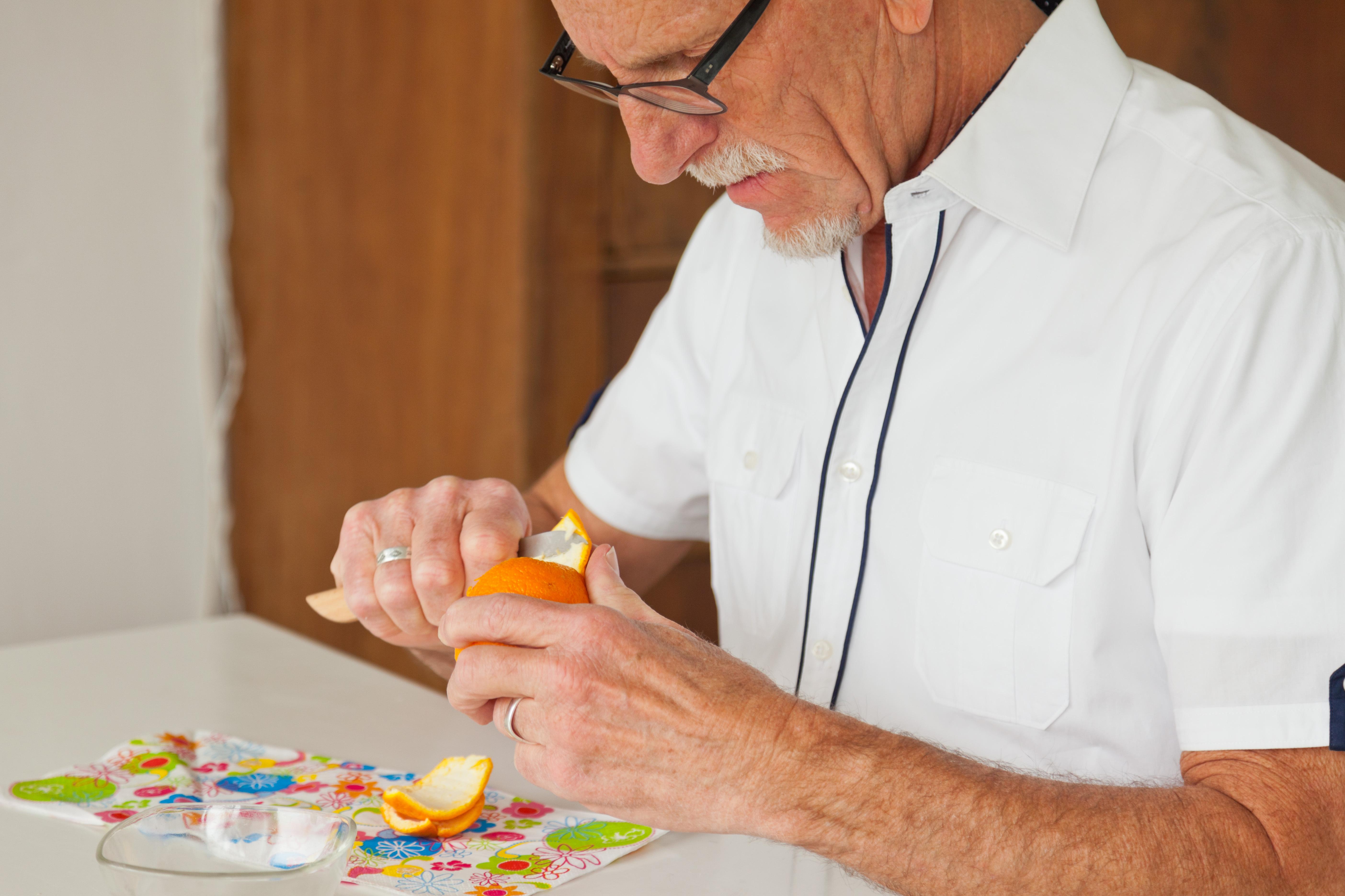 Hos äldre är undernäring och viktnedgång indikatorer på snabbare sjukdomsförlopp vid Alzheimers sjukdom.
