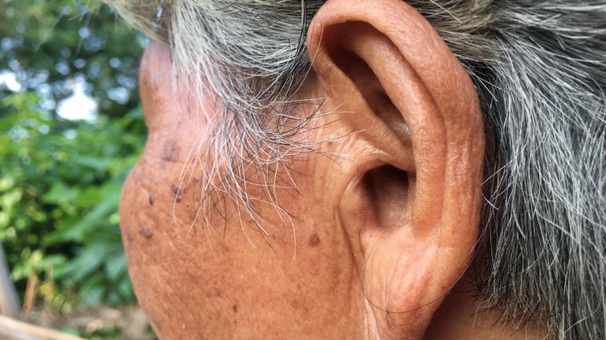stroke orsak symtom behandling