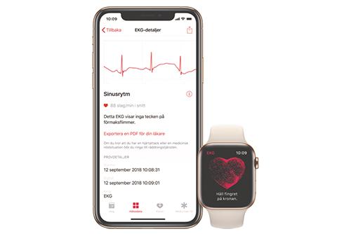 EKG-appen och funktionen för notiser om oregelbunden hjärtrytm är nu CE-märkta och godkända inom EES.