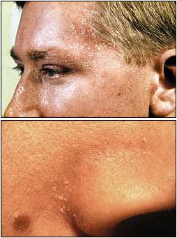 seborroiskt eksem hårbotten behandling