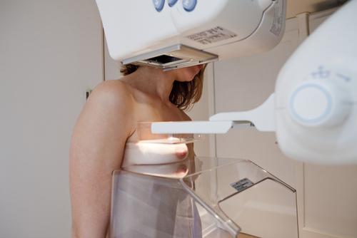 Många bröstcancerfall upptäcks vid en mammografiundersökning. Det är viktigt att regelbundet undersöka brösten så att förändringar kan upptäckas tidigt.
