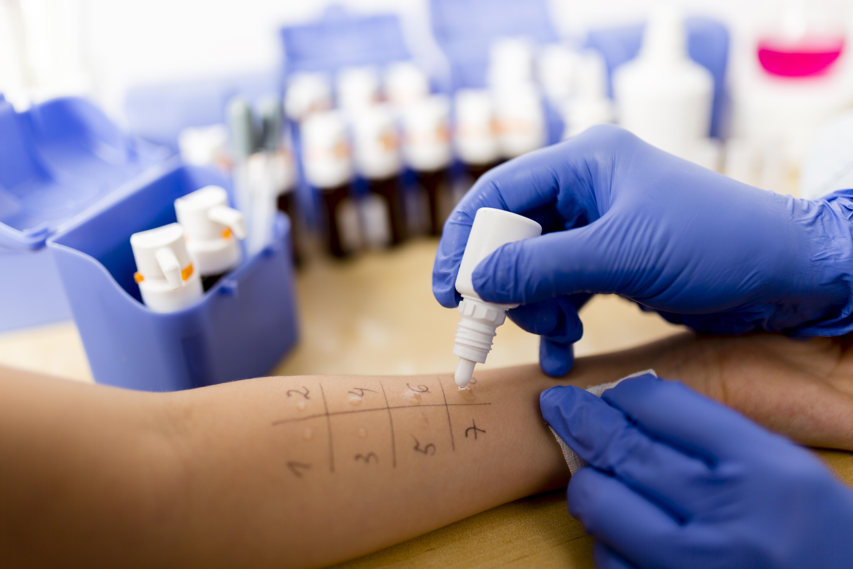 Ett så kallat pricktest är en metod för att utreda vilka ämnen man är allergisk mot.