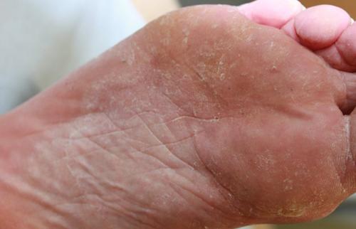klåda under fötterna allergi