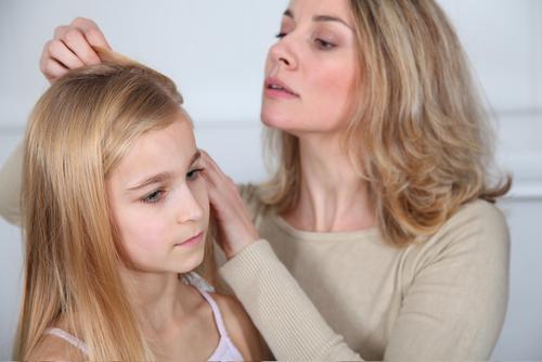 Du kan ha löss utan att det kliar men allra vanligast är att det kliar mycket i hårbotten.