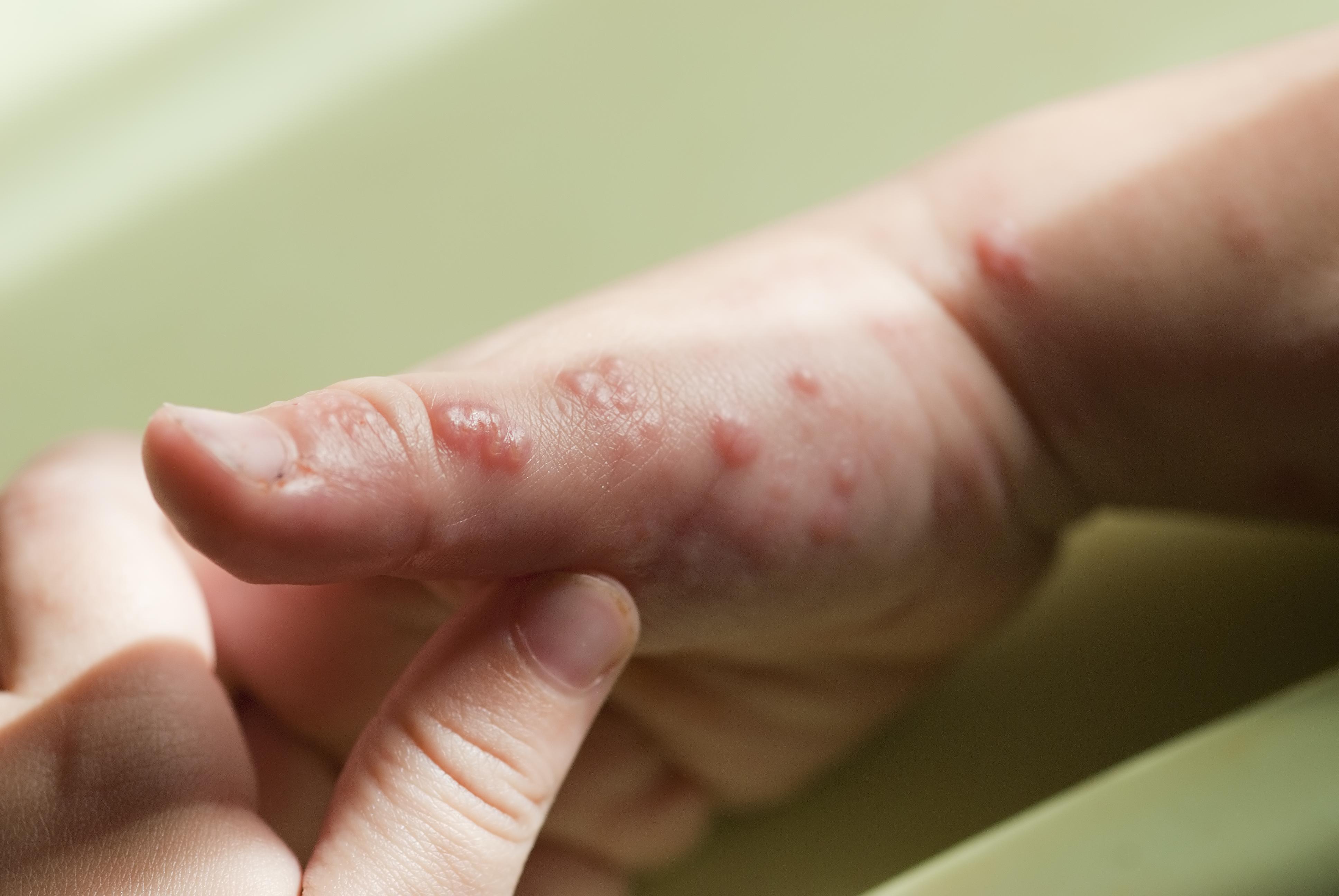 Utbrott av höstblåsor börjar oftast på dagis och förskolor.