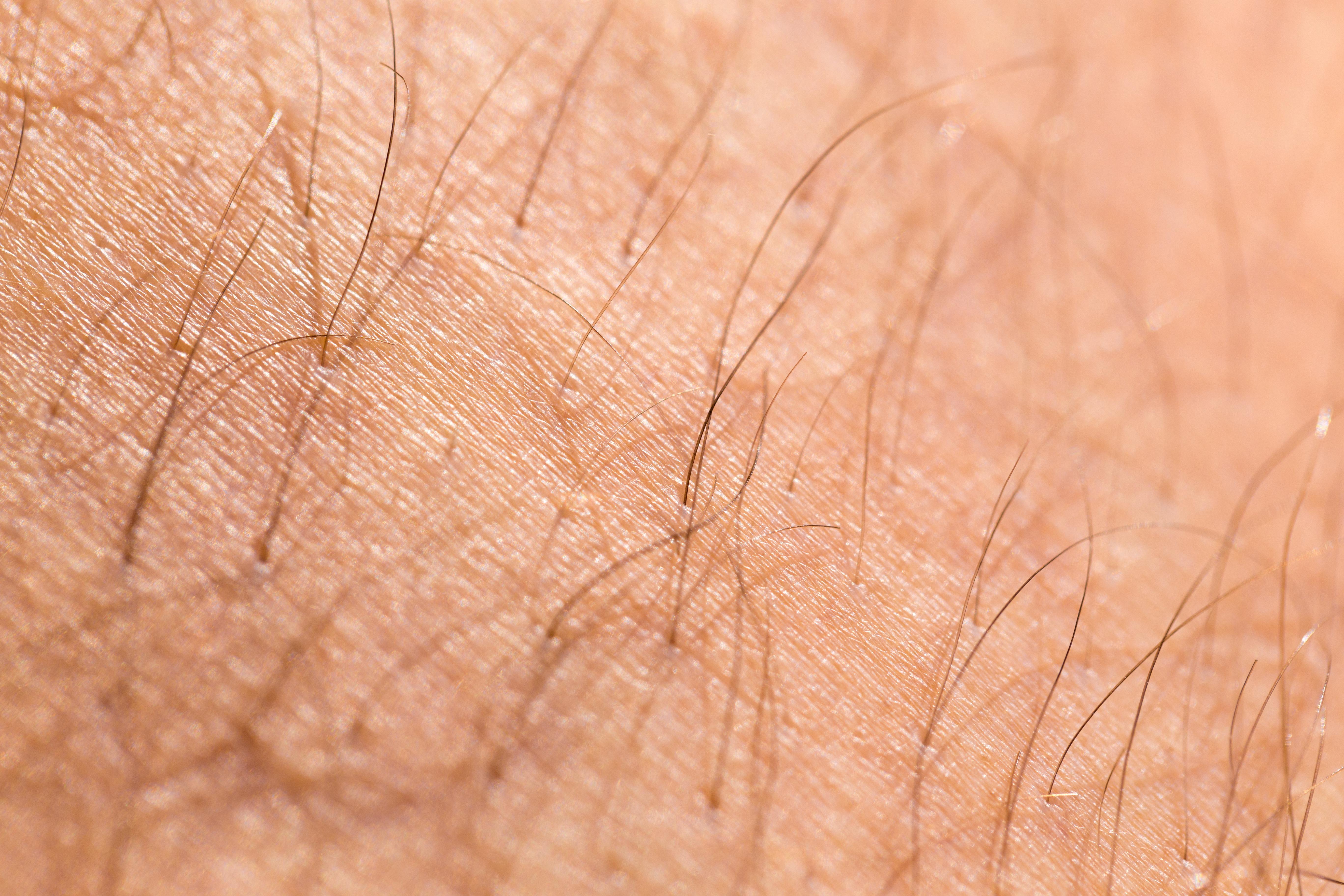 Vid hirsutism kan håret på olika platser bli grövre, mörkare och mer synligt.