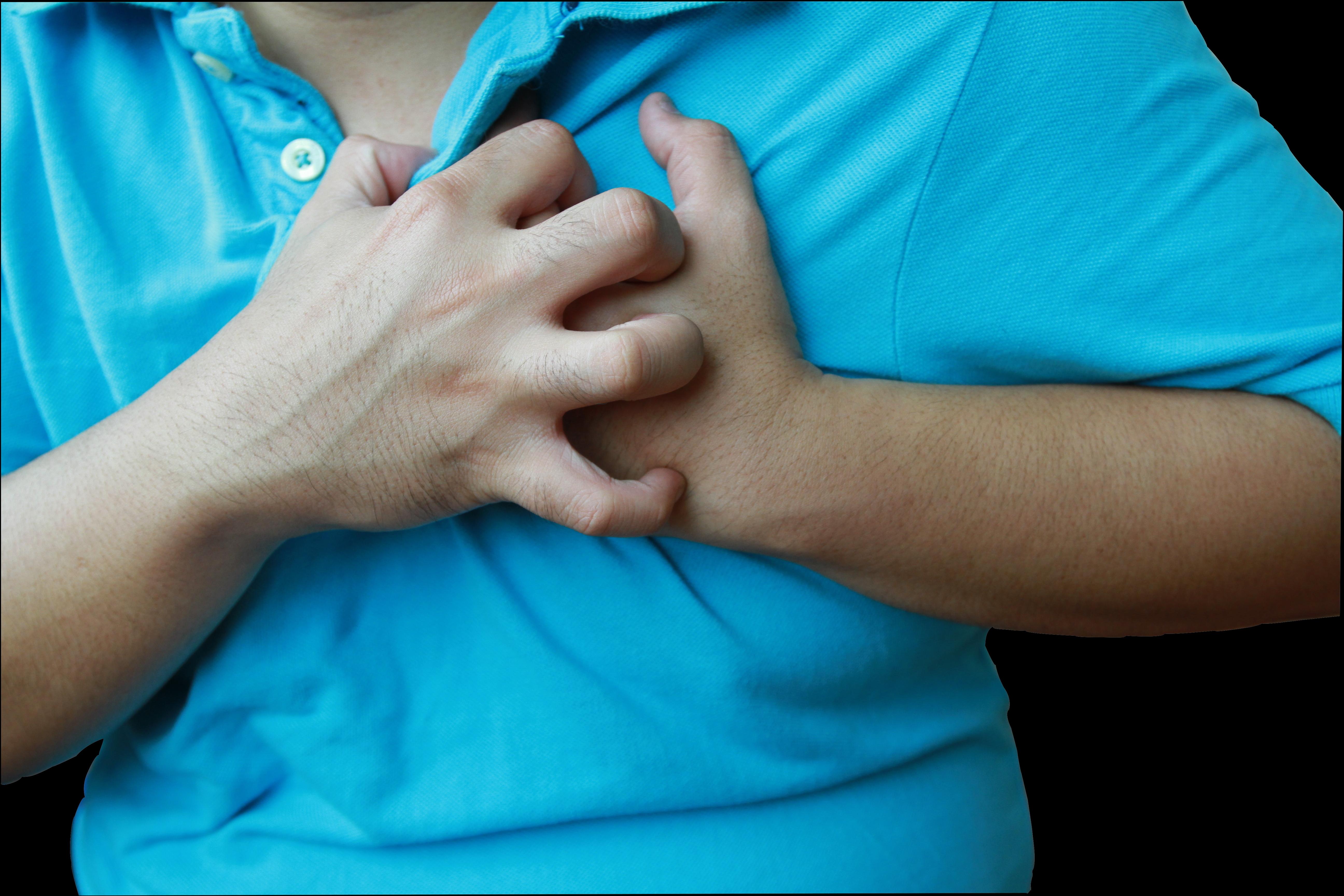 Vanliga symtom vid hjärtinfarkt är bröstsmärta, utstrålande smärta i armar och andfåddhet.