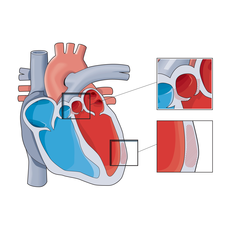 Hjärtsvikt kan orsakas av klaffsjukdom, både i form av läckage och förträngning. Illustration: Kjell Thorsson/Hjärt-lungfonden