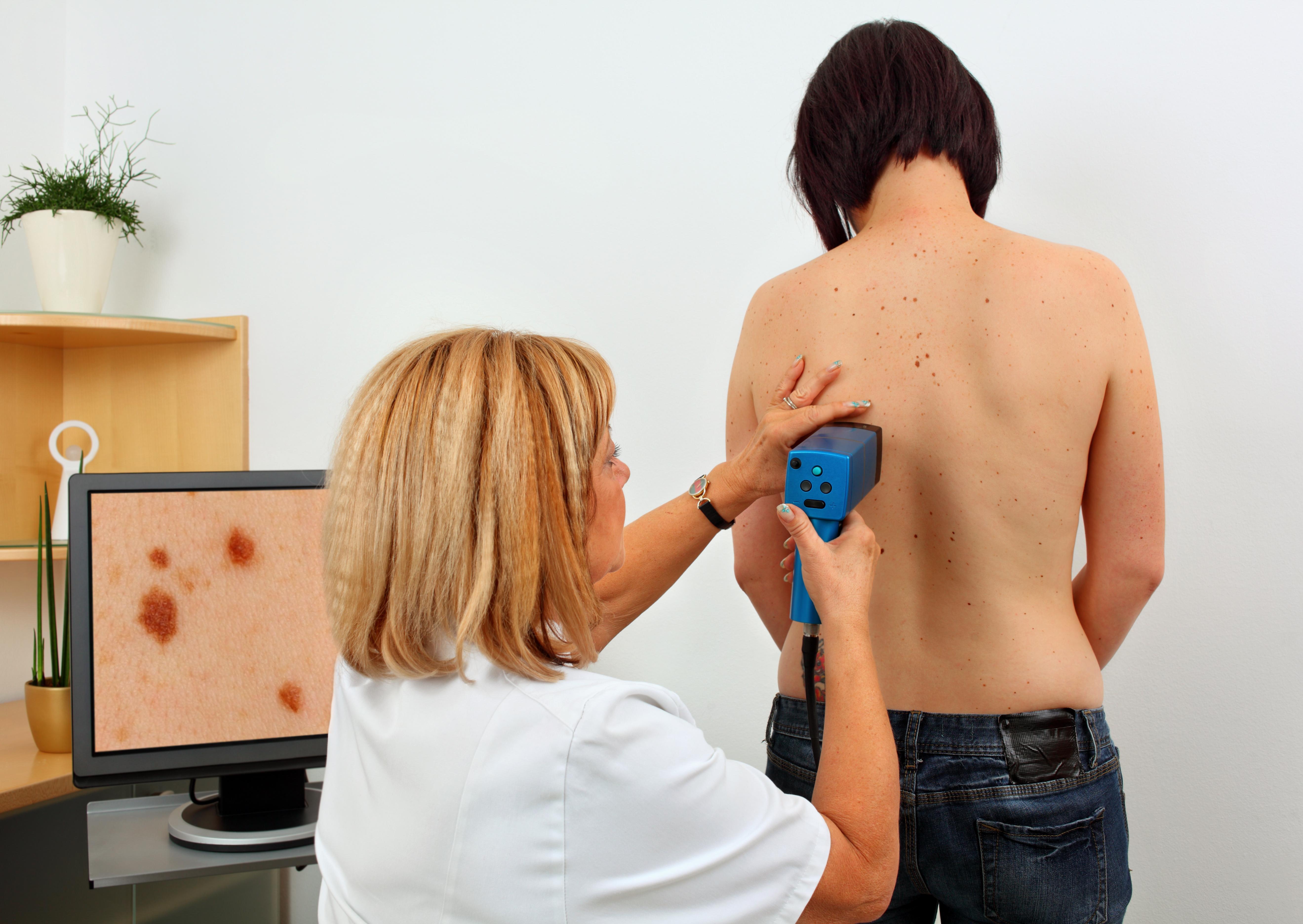 Ett foto till specialistmottagning skulle kunna snabba på diagnostiseringen av hudcancer konstaterar Statens beredning för medicinsk utvärdering.