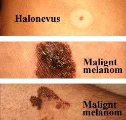 lila märke på huden