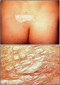 hudförändringar i underlivet