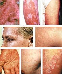 olika hudsjukdomar