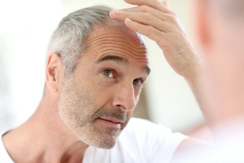 Ärftligt håravfall är utan tvekan den vanligaste typen av håravfall för både kvinnor och män men är betydligt mer vanligt hos män.