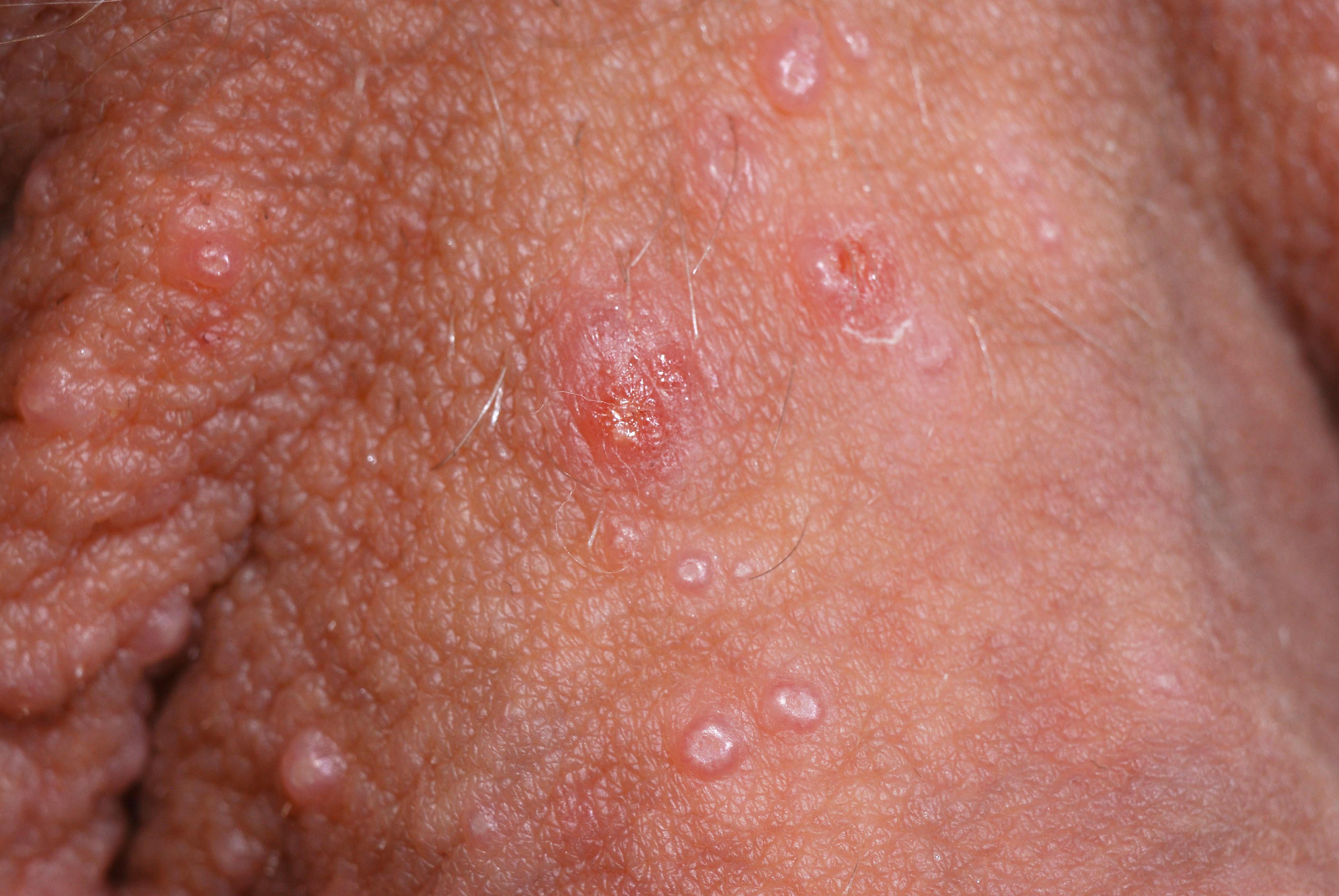 Mollusker vid penisroten. Ⓒ Anders Hallén, hudläkare