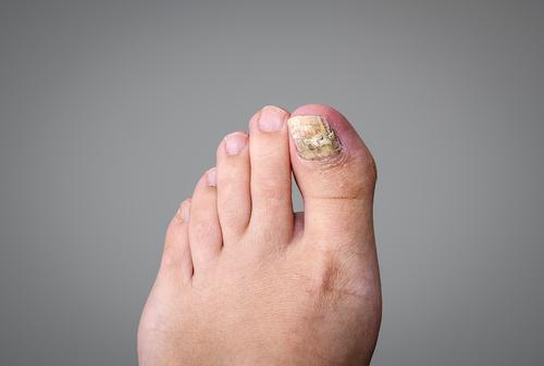gul under fötterna