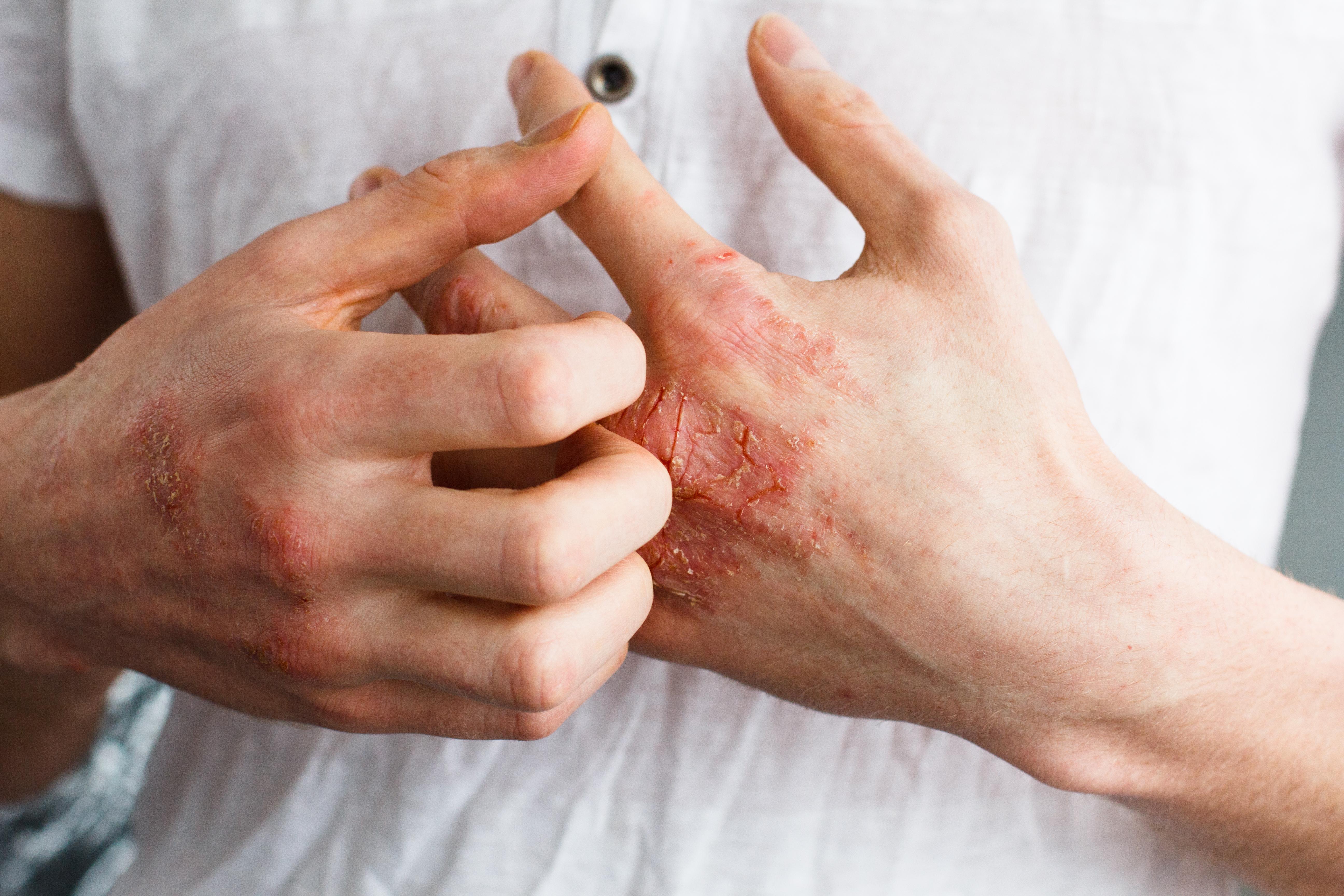 Psoriasis kan kännas besvärligt men det finns behandling, bland annat kortisonfri kräm på apotek.