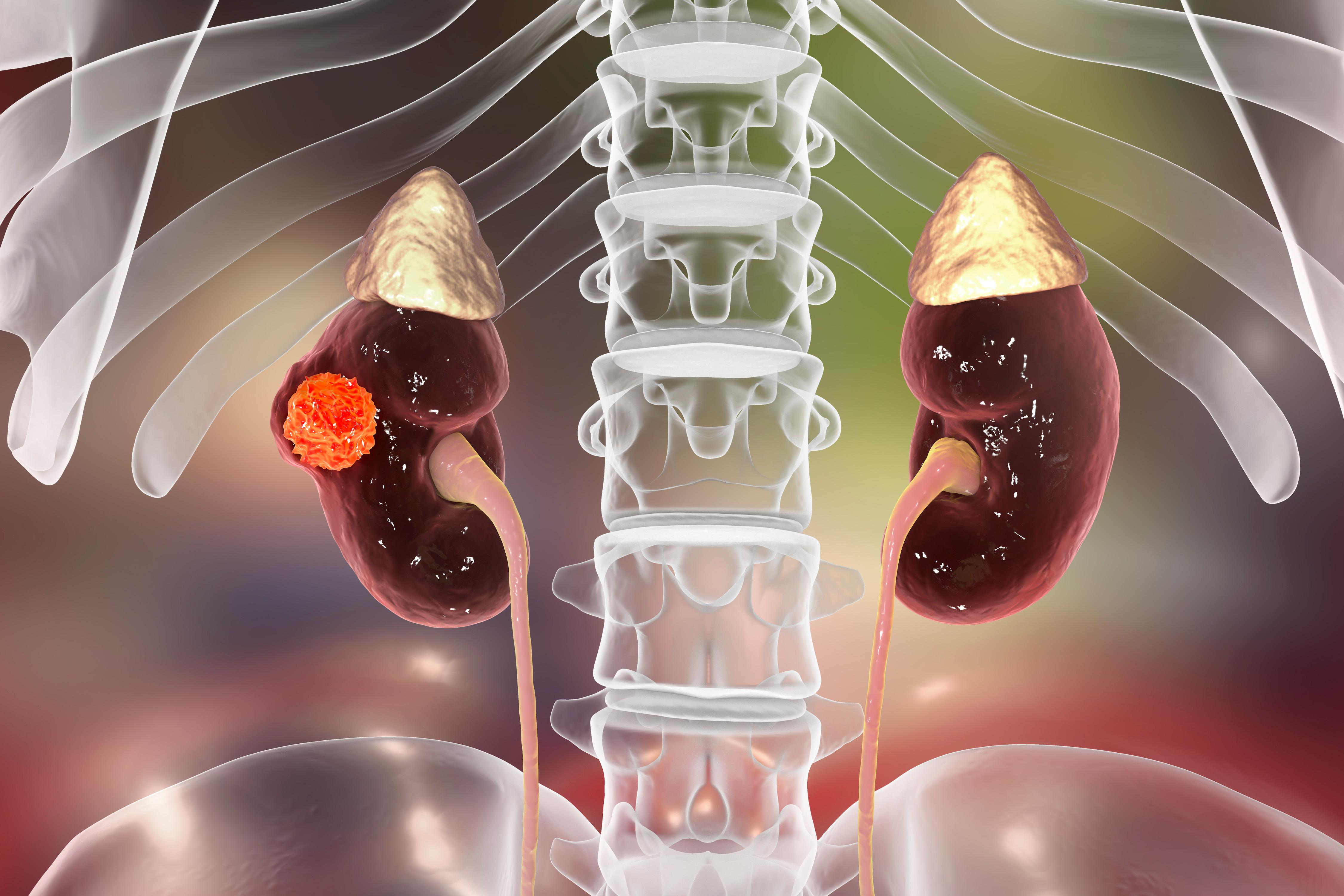 Att identifiera njurcancer med ökad risk för spridning är av vikt för att förbättra patientens prognos.