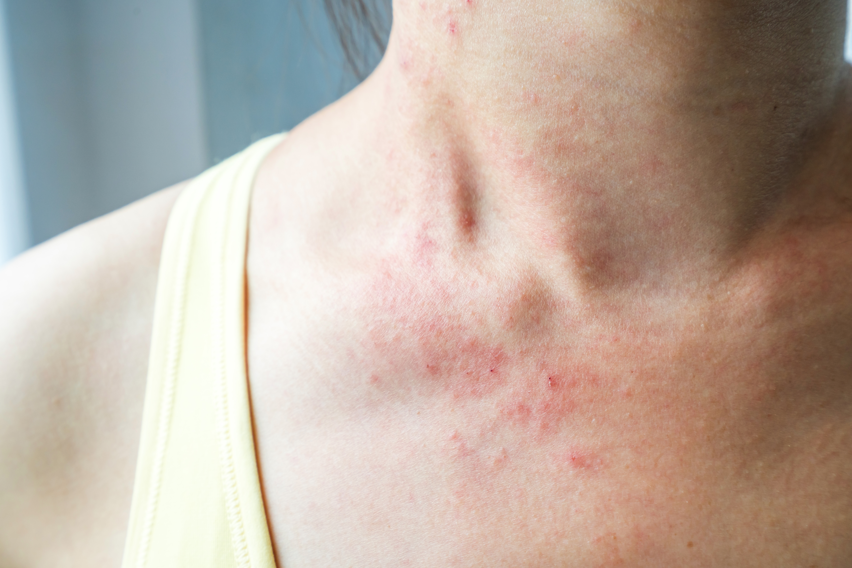 Petekier uppkommer genom att det blir en blödning från hudens minsta blodkärl.