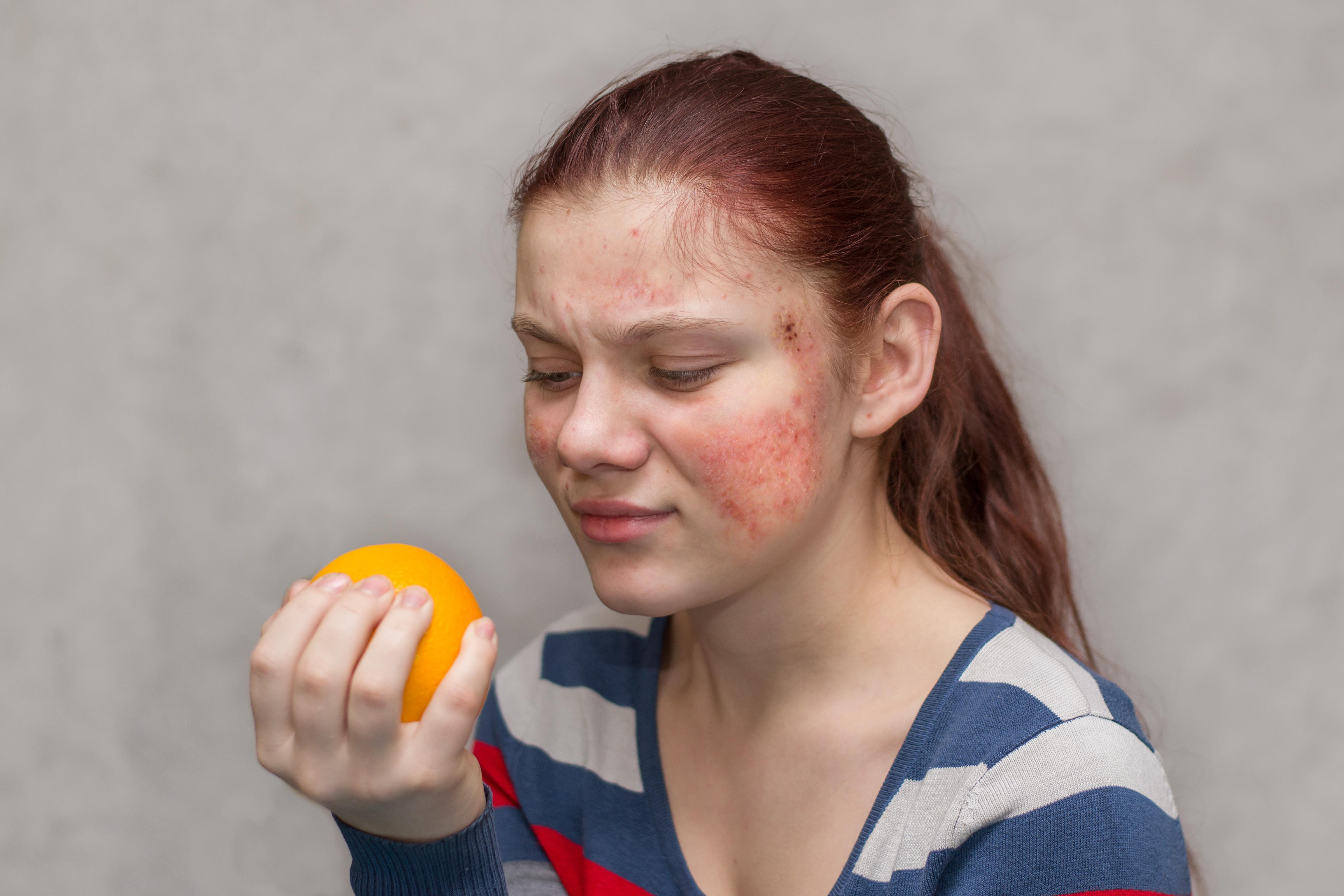 När en pollenallergiker får korsallergi handlar det ofta om olika typer av frukter eller bär.