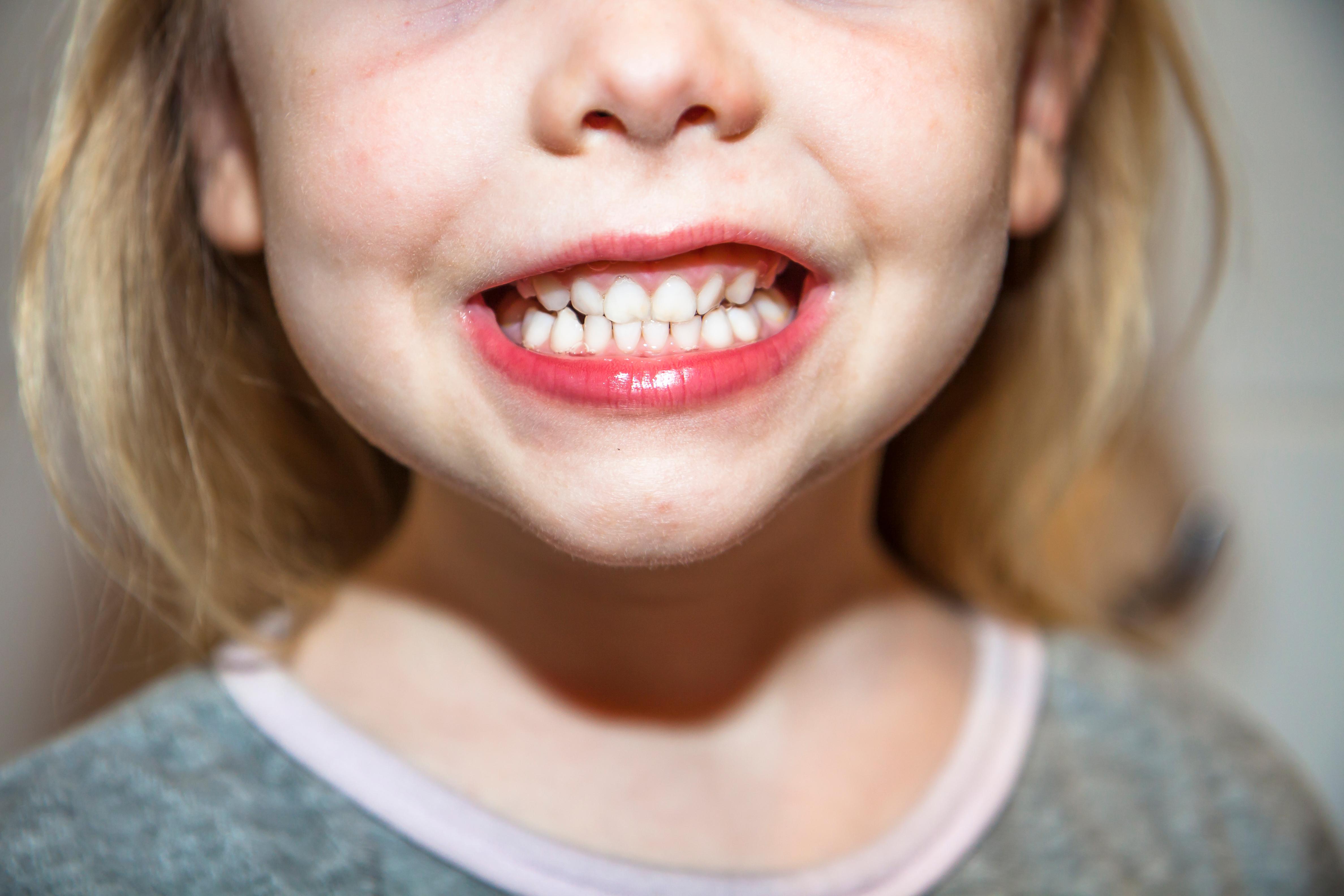 Förutom att karies ökar så ser man också att av tandhälsan förvärras hos de 30 procent av alla barn som redan har sämst tandhälsa.