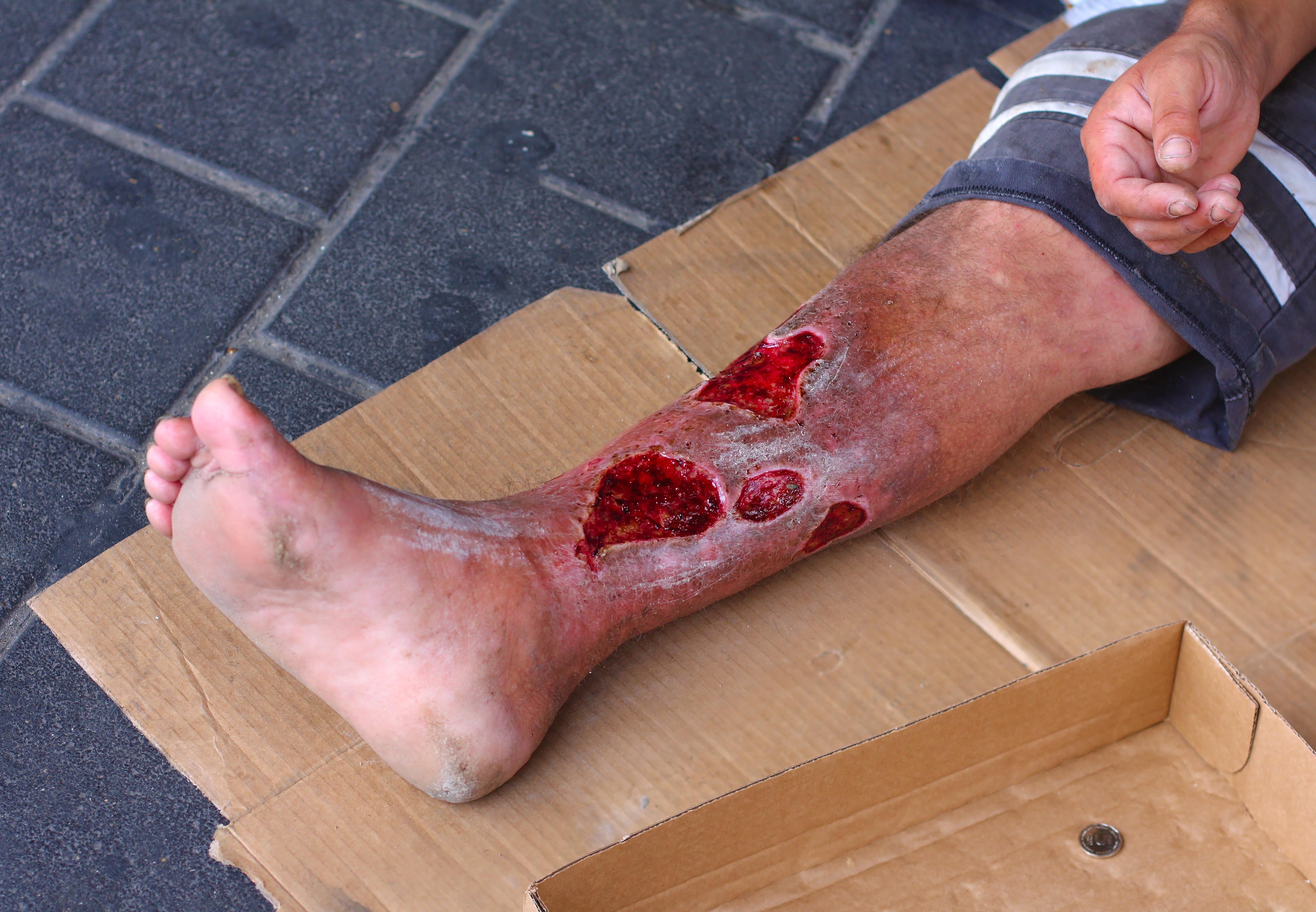 infekterat sår behandling