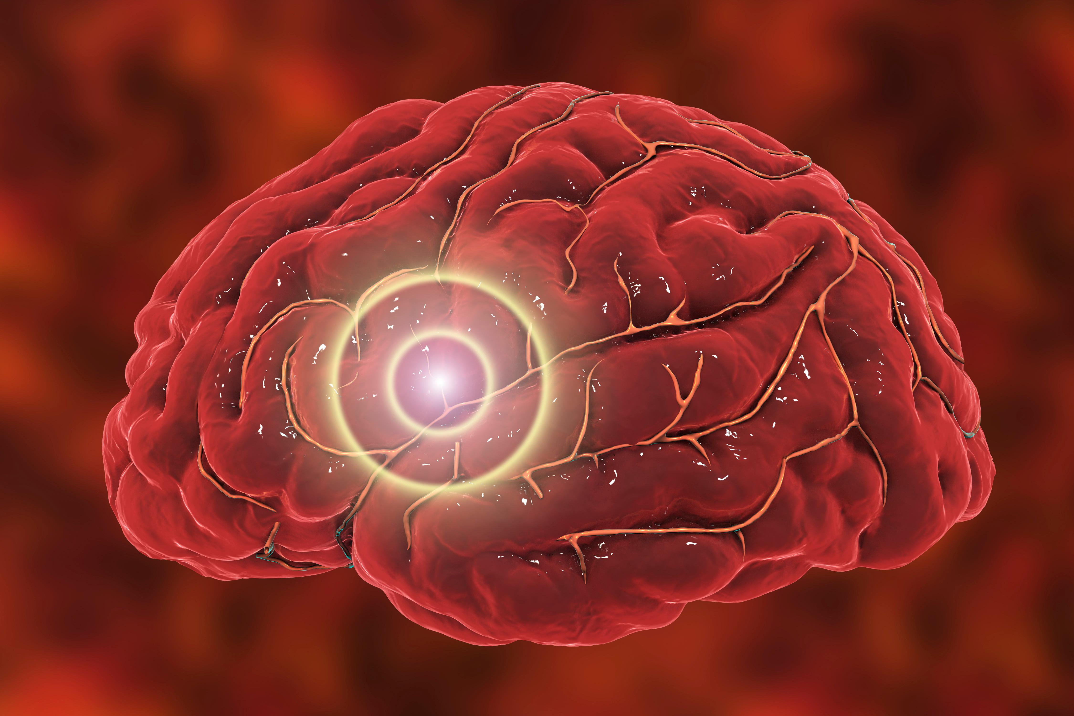 Det finns teorier forskning kring att hjärnstammen och trigeminusnerven är inblandade.