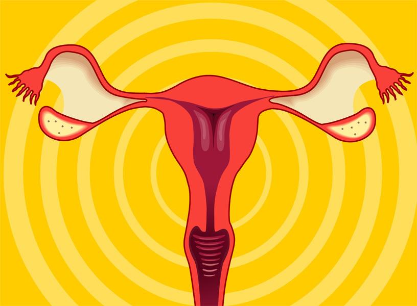 De flesta kvinnor som drabbas av äggstockscancer är mellan 60-70 år.