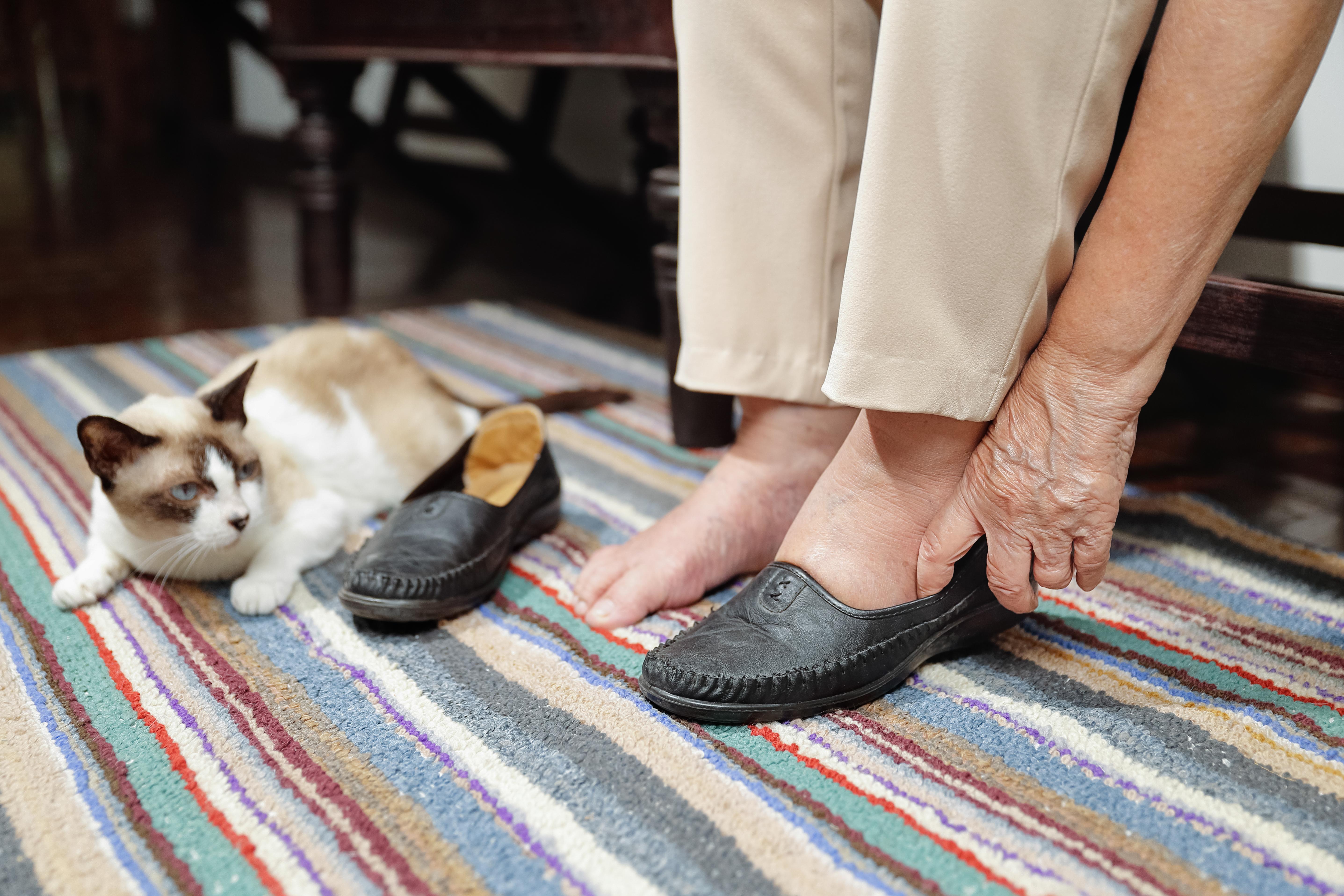 Ödem är resultatet av att vätska av någon orsak samlas i ben och i fötter.