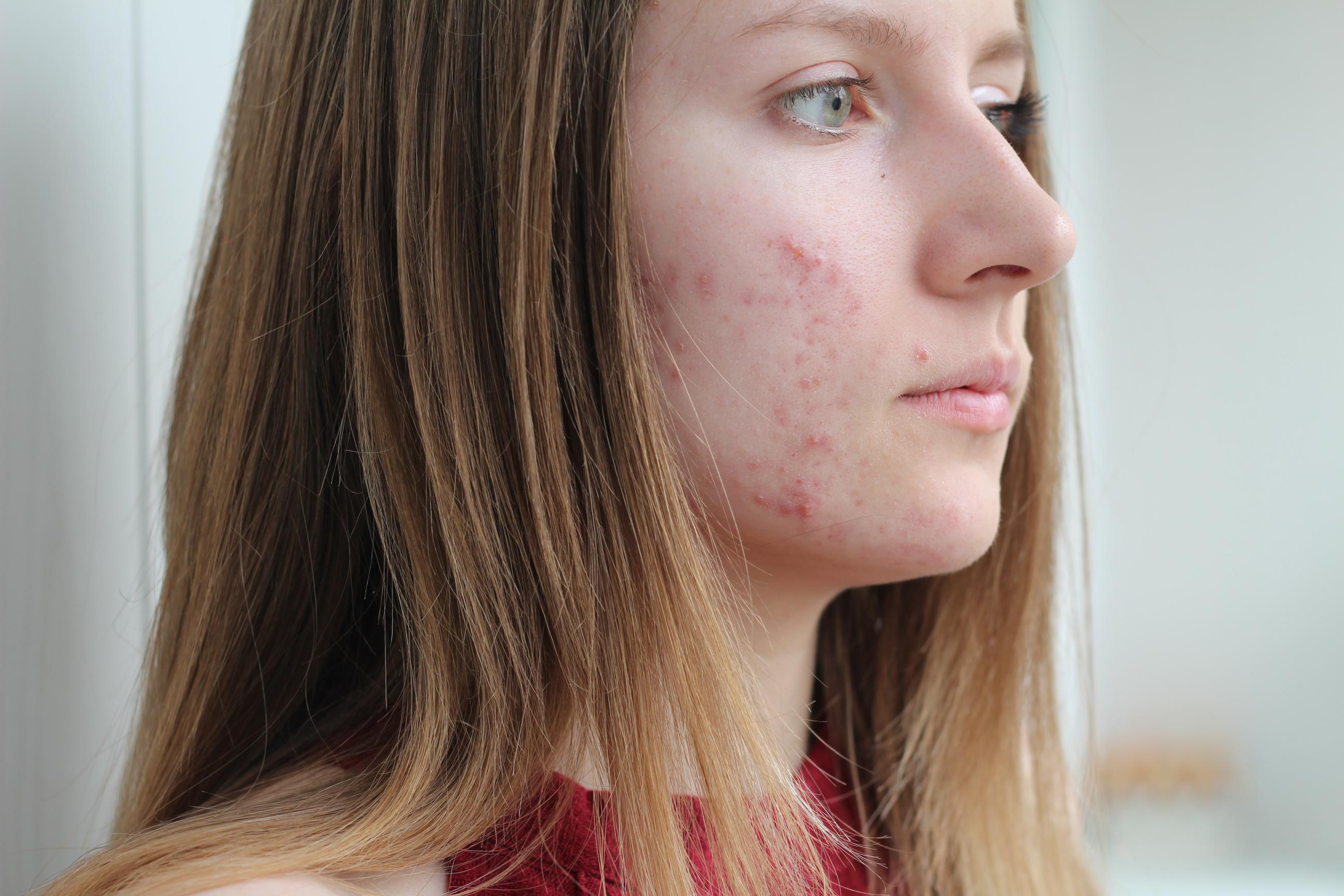 Flickor får akne tidigare än pojkar vilket hänger ihop med att puberteten inträder tidigare hos dem.