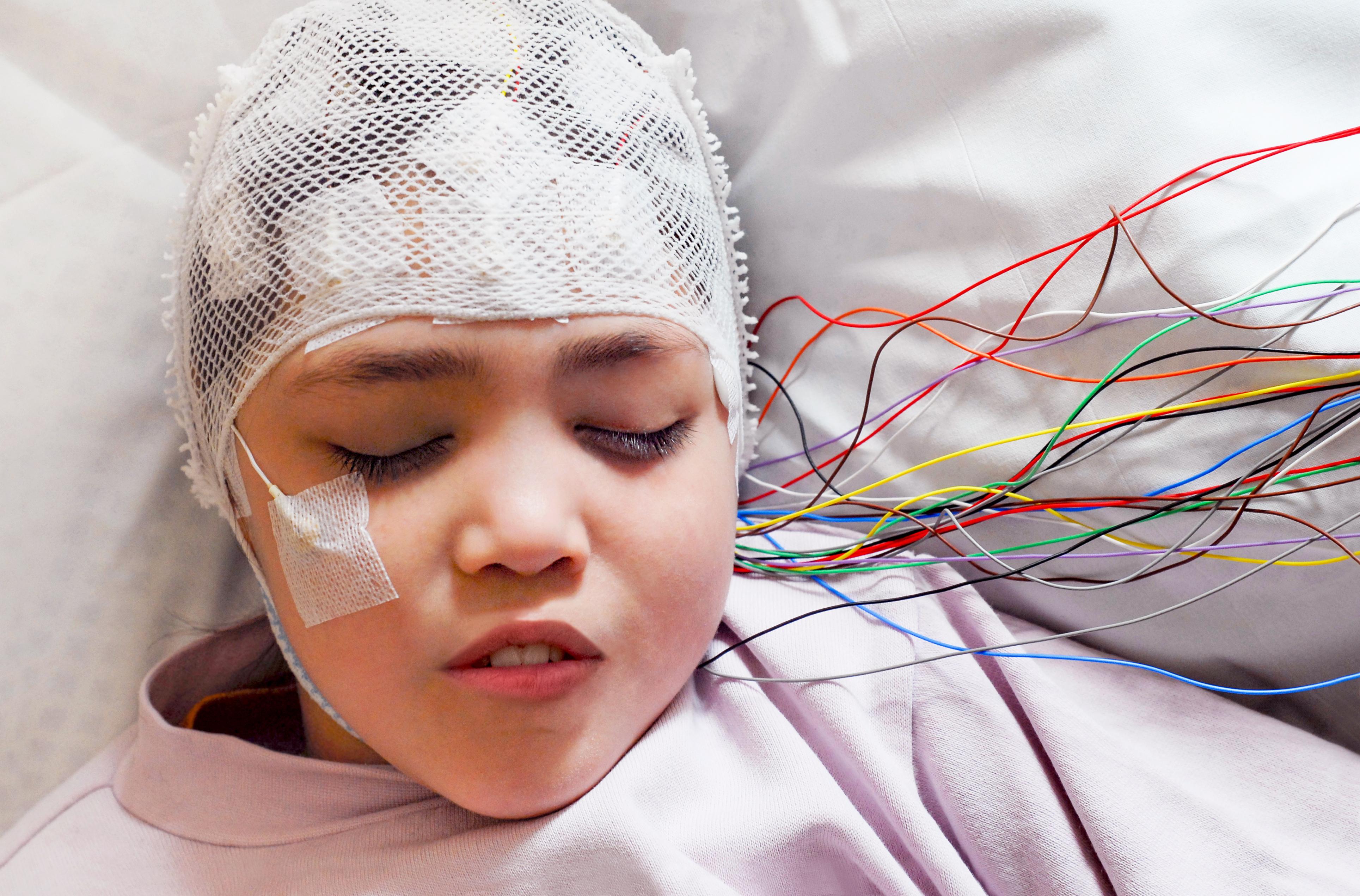 Elektroencefalografi (EEG) är en metod för att registrera hjärnbarkens spontana elektriska aktivitet med hjälp av elektroder som vanligtvis klistras fast på skalpen.