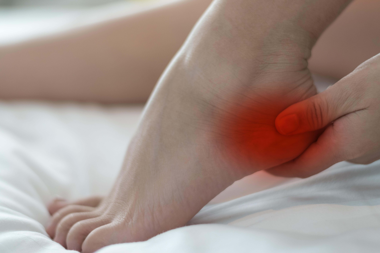 Hälsporre (plantar fasciit) är en överbelastning av fotsulan som gör kraftigt ont.