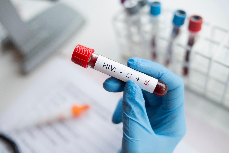 Tillfrisknandet anses vara bevis på att vetenskapen en dag kan bota aids.