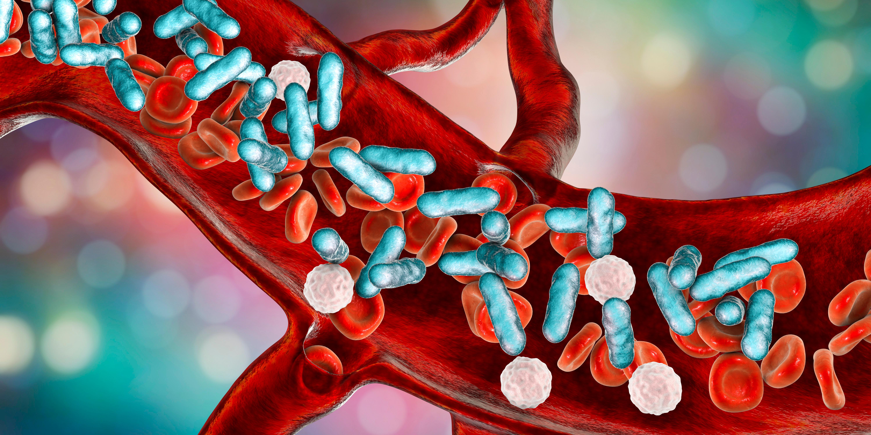 Sepsis (blodförgiftning) är ett allvarligt tillstånd som orsakas av att kroppen reagerar på en infektion. När man får sepsis har bakterier tagit sig in i blodet.