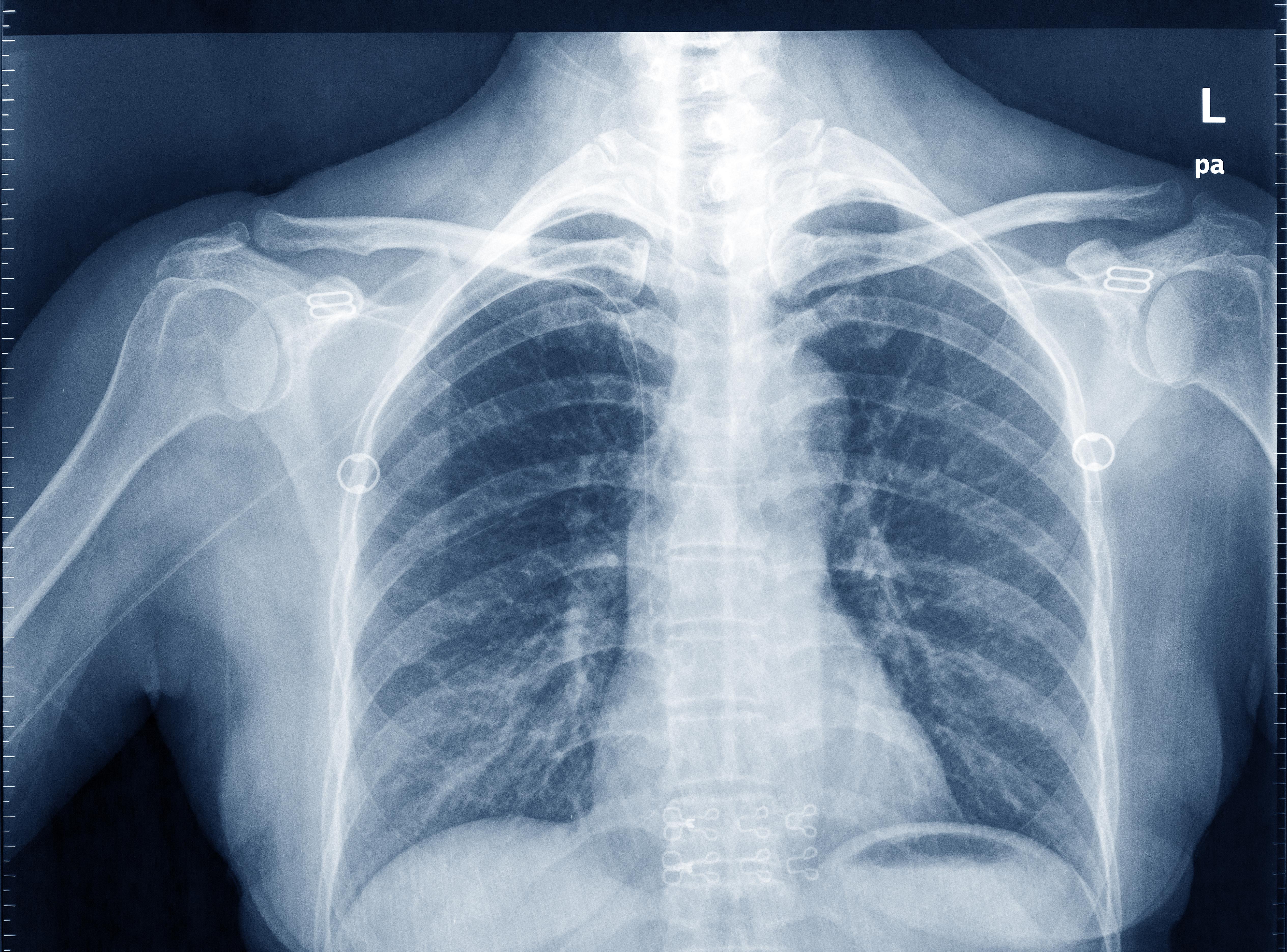 Vi kallar det Röntgenstrålar, men Wilhelm Conrad Röntgen själv tog inget patent på sina konstruktioner och kallade alltid strålarna för X-strålar.