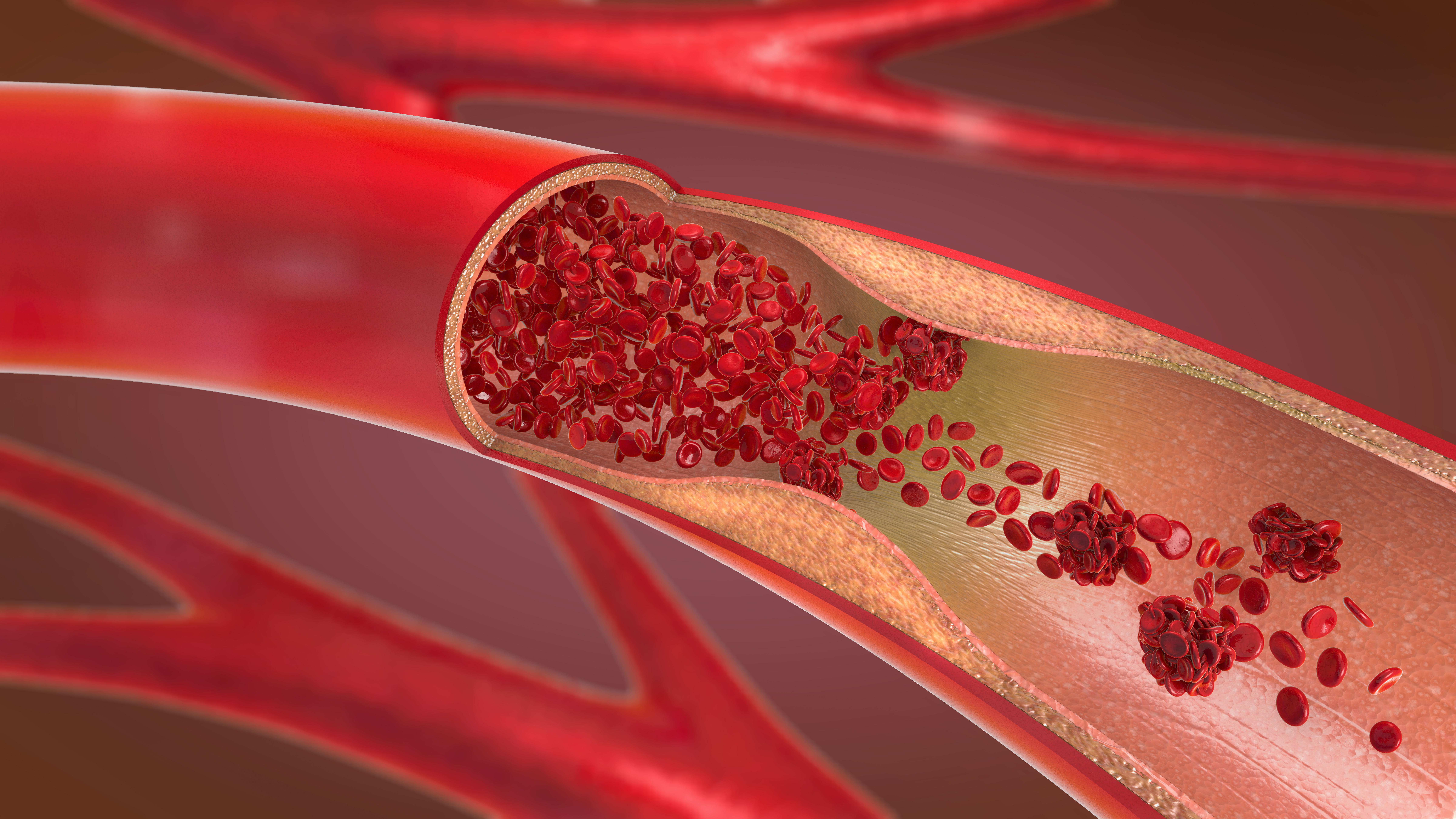 Blodpropp, venös trombos, är en vanlig och allvarlig kärlsjukdom som kan leda till förtida död.