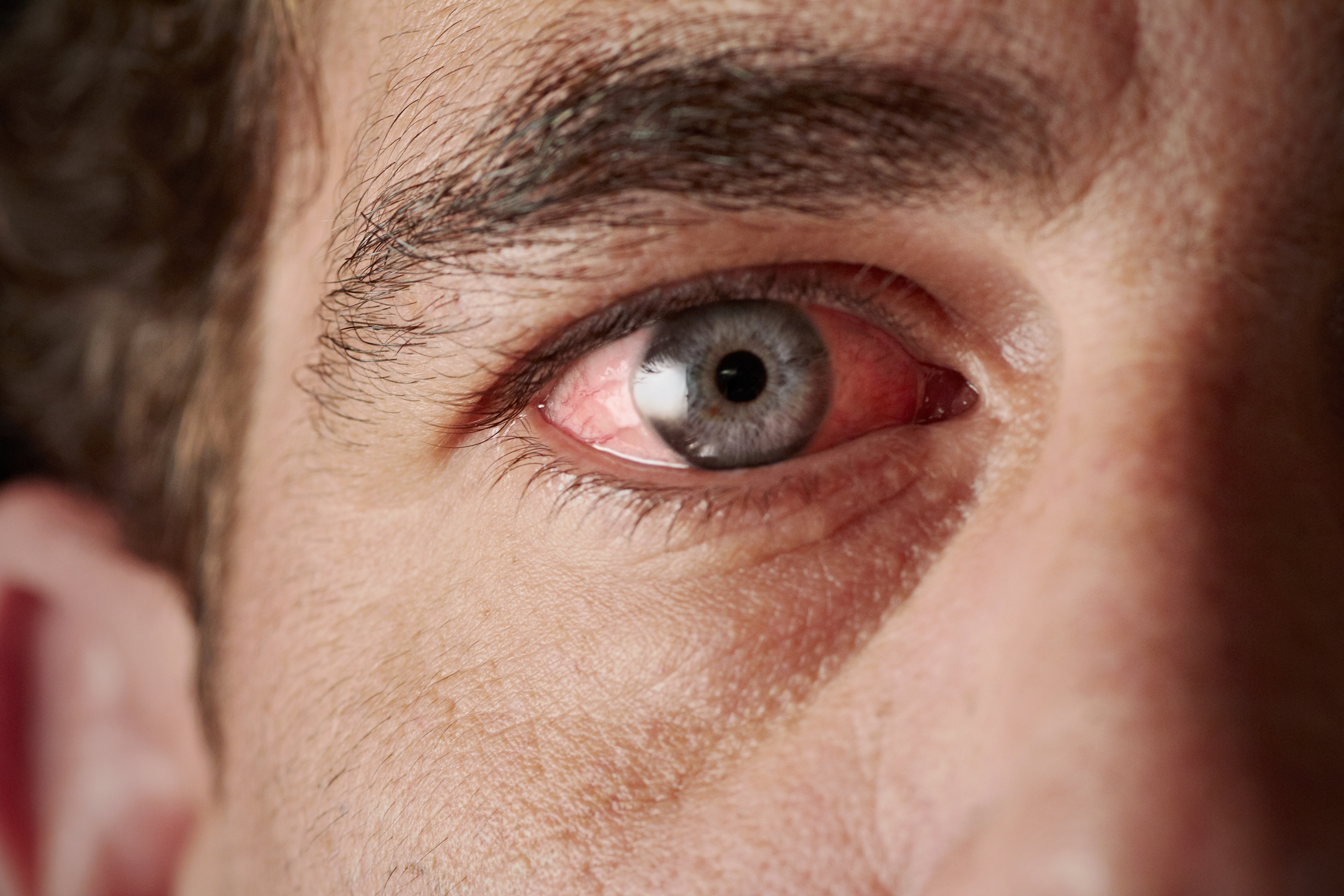 Ofta är ögat rött och fuktigt efter en operation och brukar vara det i en till två veckor.