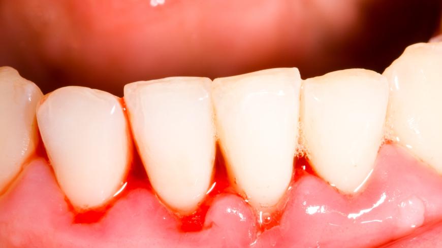 varbildning i tandköttet
