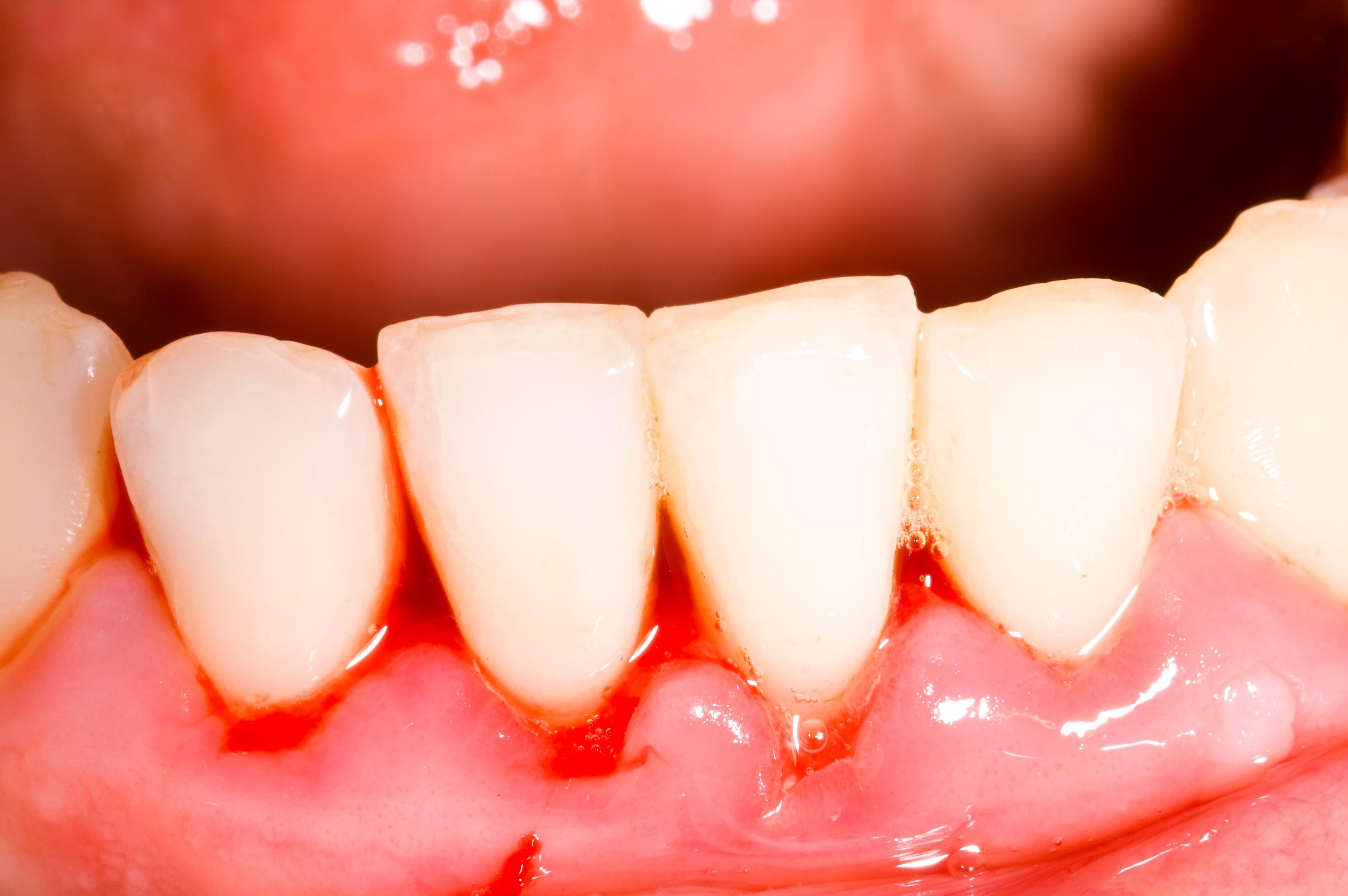 Blödande tandkött beror på en inflammation och kan på sikt leda till tandlossning.