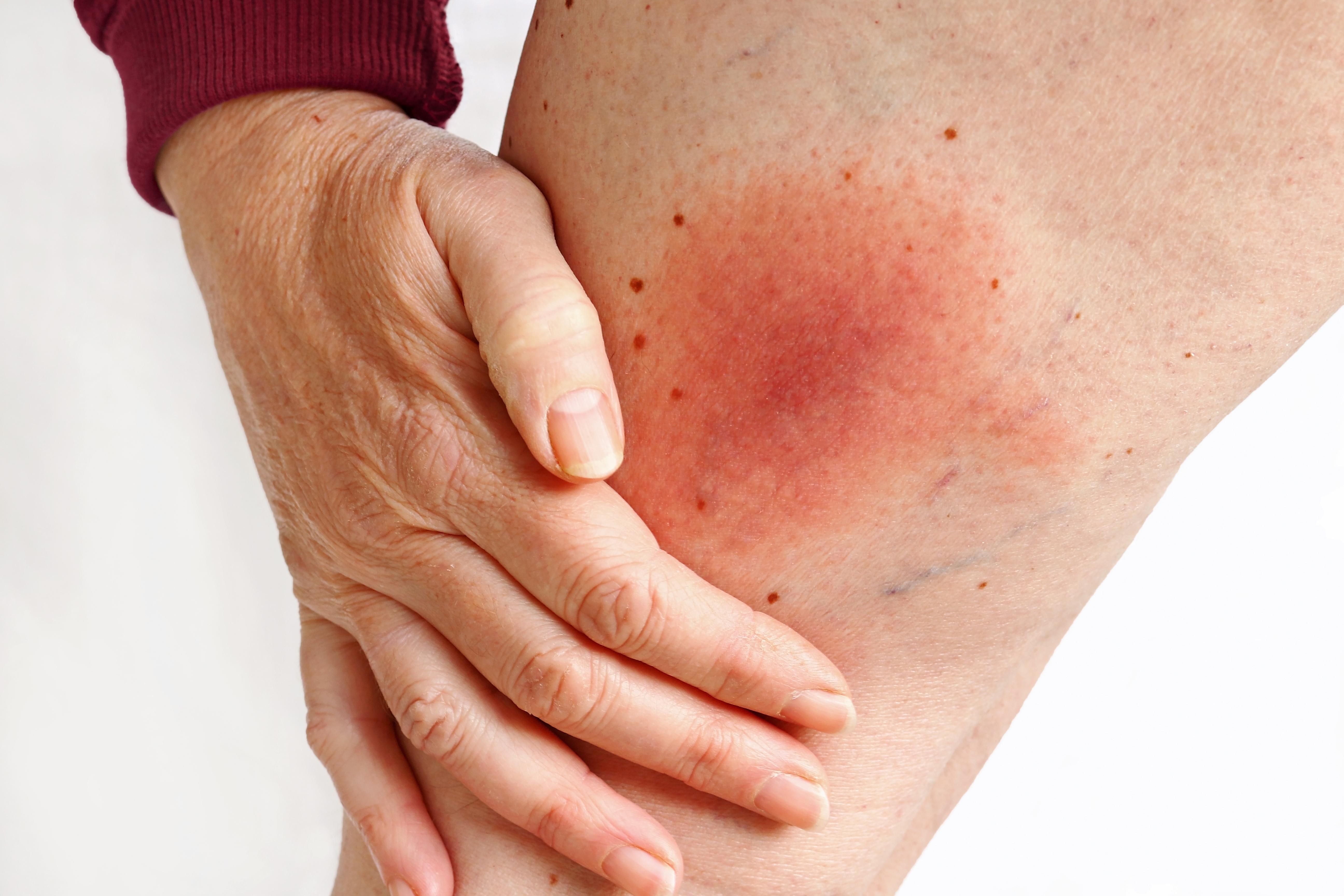 I samband med anaplasmos (Ehrlichios, fästingfeber) kan hudrodnad uppstå.