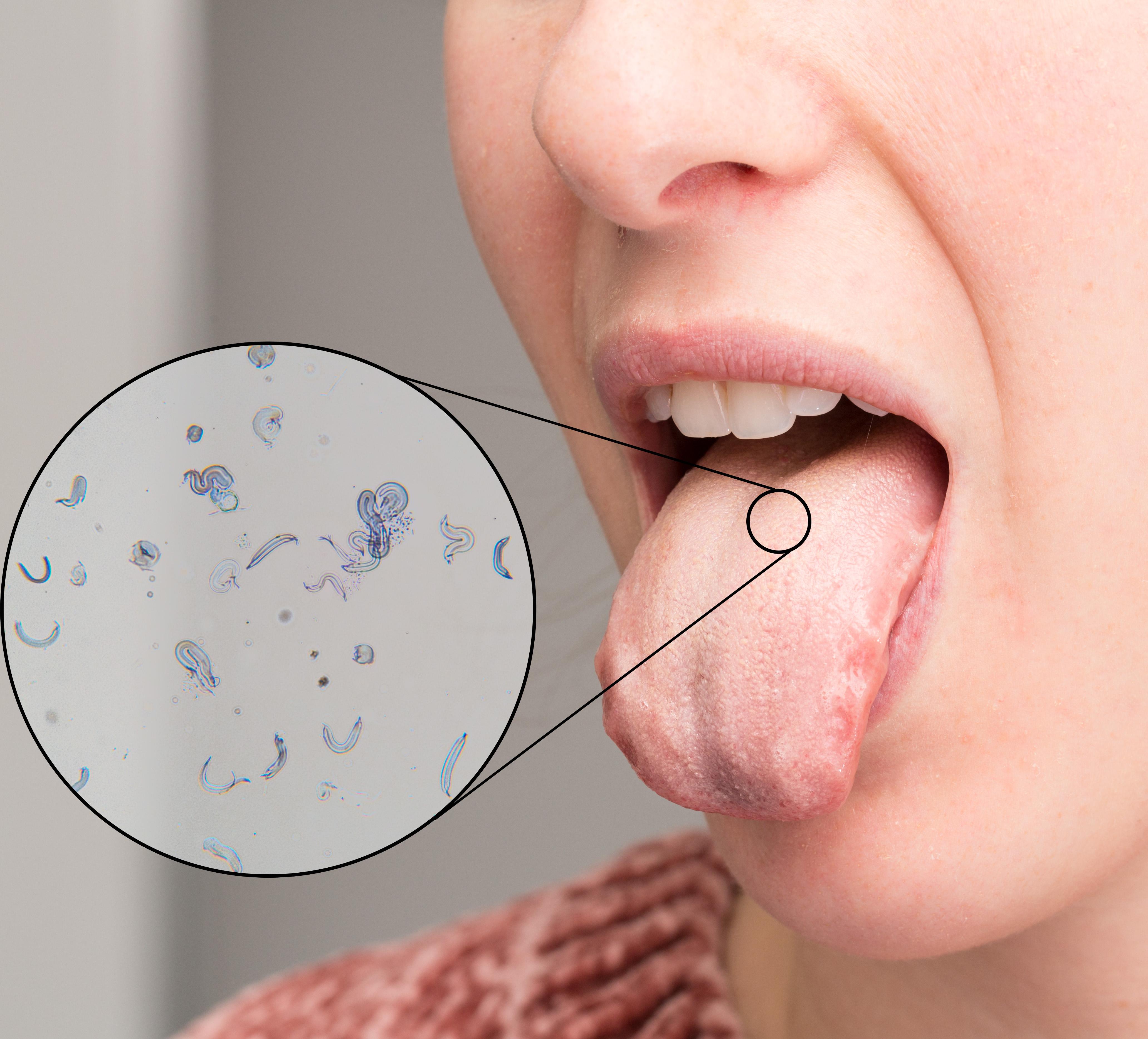 Nästan varannan person drabbas någon gång av svamp i munnen.