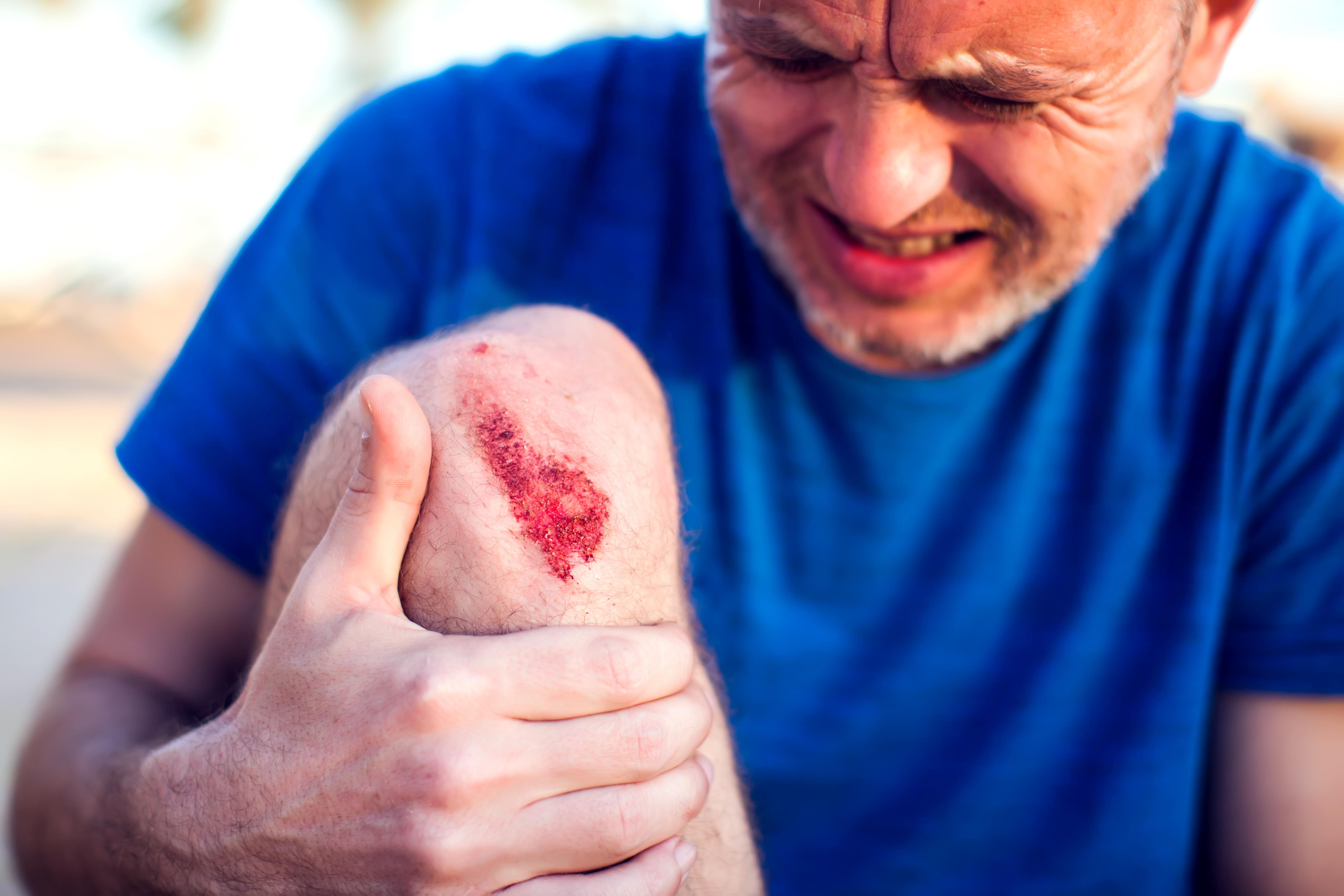 Ett skrubbsår kan göra ack så ont, men rätt rengjort är det oftast ganska ofarligt.