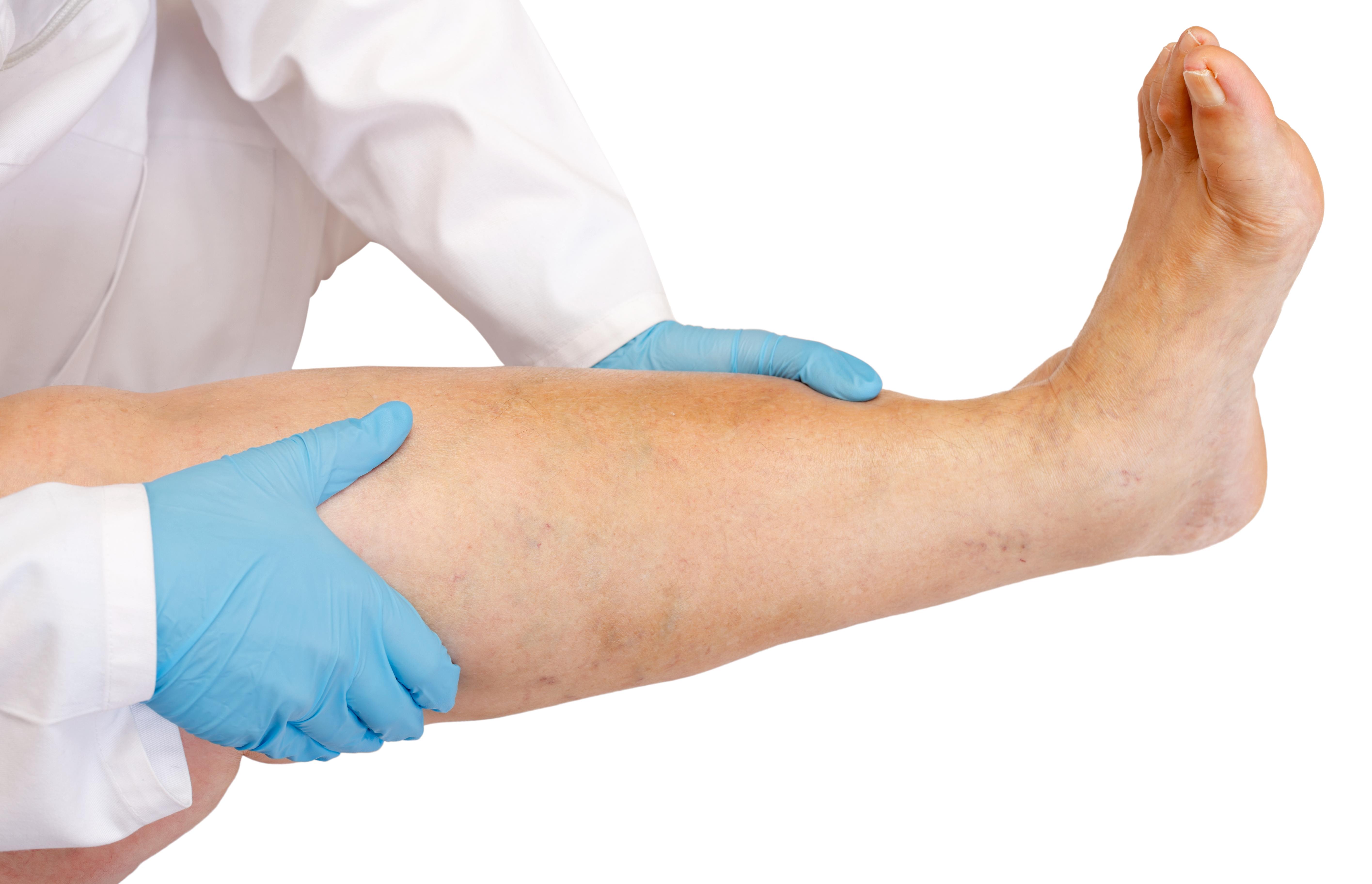 Åderbråck är förstorade vener, oftast på benen, som utvidgar sig på grund av högt tryck.