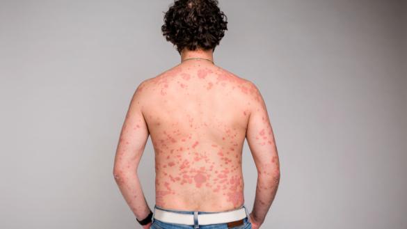 smittar handvårtor till andra delar av kroppen